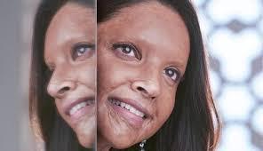 deepika padukone will play an acid survivor named malti in meghna gulzar s chhapaak