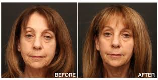 the patient above was treated with 3 voluma for cheek jawline enhancement 1 vollure 1 volbella for treatment of smile lines marionette lines