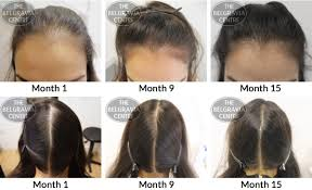 Hairstyles Female Hair Loss Index Of Wp Content Uploads 2014 11
