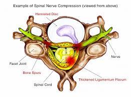 Whats A Facet Spondylosis Center Spinal Osteoarthritis Symptoms Exercises