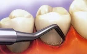 Image result for بروساژ دندان