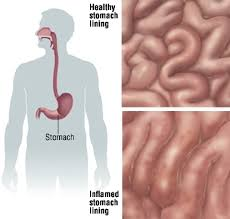 upper stomach pain immediately after drinking alcohol