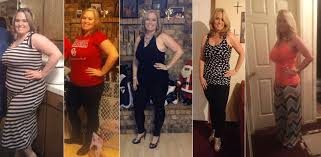 Weight loss surgery results with Dr. Ayoola