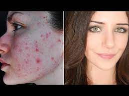 how to cover acne s if you want