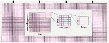 Ekg Graph Paper Rome Fontanacountryinn Com