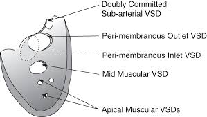 Pathophysiology Of Ventricular Septal Defect In Flow Chart Ventricular Septal Defects Chapter 9 Core Topics In