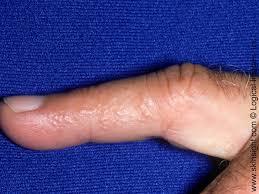 Dyshidrotic Eczema | National Eczema Association