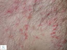 Pruritus(Itching):Symptoms,Causes & Treatment » How To Relief