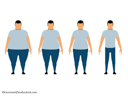 obesity weight loss gastric byp surgery bariatric