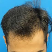 Fue Hair Transplant Timeline Follow His Hair Restoration