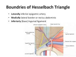 indirect inguinal hernia. types of indirect inguinal hernia s