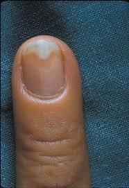 p in onycholysis the nail plate separates from the nail bed it
