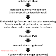 Pathophysiology Of Ventricular Septal Defect In Flow Chart Medicosnotes Com Pathophysiology Of Ventricular Septal
