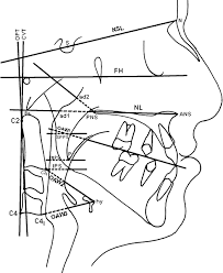 sagittal airway dimensions following maxillary protraction a supplementary data