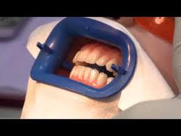 <b>Отбеливание</b> зубов Philips Zoom в Москве — стоматология ...