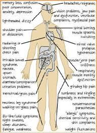Fibromyalgia Chart How To Combat Your Histamine Intolerance Fibromyalgia