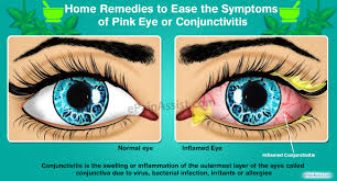 Home Remedies to Ease the Symptoms of Pink Eye or Conjunctivitis