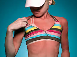 Sunburn Severity Chart Burn Pictures First Second And Third Degree