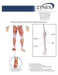 Tens Machine Pad Placement Chart Zmpczm016000 12 17 Ankle Fibula Tibula Electrode Placement