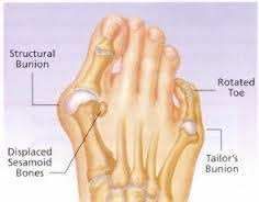 Image result for BUNIONS