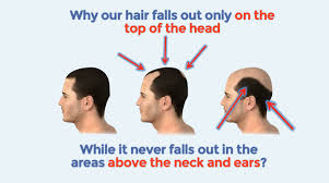 Male Pattern Baldness Cure New Hairstyle Bald Cure Balding Cure Reverse Male Pattern Baldness