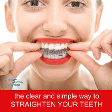 2 995 00 reg 5 500 00 complete teeth straightening with clear aligners orthosnap invisible