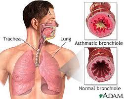 sembur daripada astma