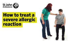 How To Treat A Severe Allergic Reaction, Signs & Symptoms - First ...