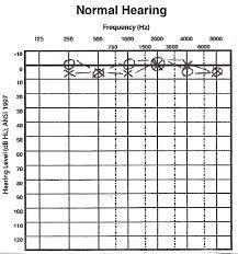 Normal Hearing Range Age Chart Vr4 Hearing Loss 6 Basic Hearing Evaluation