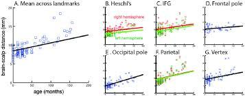 Vertex Distance Chart Growth Charts For Brain Scalp Distance A Mean Growth Chart