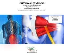 video piriformis syndrome pain relief