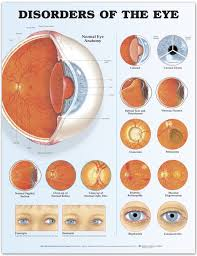 Disorders Of The Eye Chart Poster Laminated