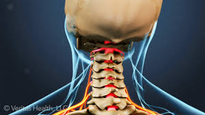A cervical foraminotomy is a surgical procedure done at the front or back of the neck