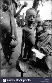 starving white child. Beautiful White SOUTH SUDAN 1998 MAPLE FEEDING CENTREAJIEP CAMP UNACCOMPANIED CHILDREN  STARVING AND EMACIATED To Starving White Child