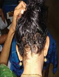 subsidence of the skin lesions and regrowth of hair following zinc supplementation