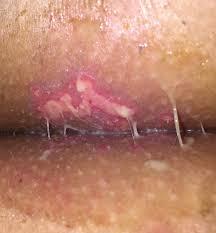 herpes genitalis doccheck     Herpes Simplex Treatment Antiherpes com