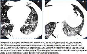 ОГК Пневмония Интерстициальные пневмонии Интерстициальные  cop одинаково часто встречается у мужчин и женщин чаще всего у лиц старше 55 лет Симптомы заболевания обычно сохраняются менее 3 мес