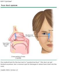 blocked tear duct family care clinic