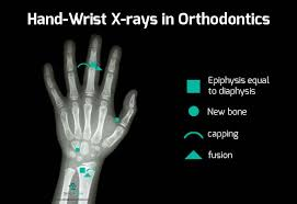 Bone Age Wrist Chart Hand Wrist X Ray Analysis For Orthodontic Treatment Planning
