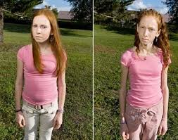 bulimic people before and after. Bulimia Before And After Pictures Bulimic People New Health Guide