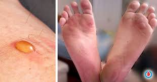 diabetic blisters pictures