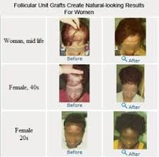 Male Pattern Baldness In Women Awesome Hair Science Robotic Hair Transplant Clinic Is Established By Dr
