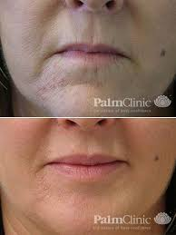 treatment for wrinkles lines palm
