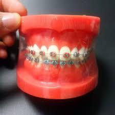 Orthodontic Dental Typodont Teeth Model With Fully Metal Bracket