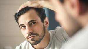 your hair might be getting thinner