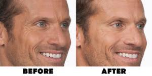 BOTOX® Cosmetic - Fort HealthCare