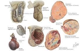 testicular rupture. testicular rupture