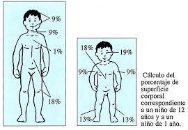Resultado de imagen de quemaduras niños