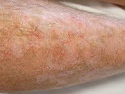 Preventing and managing dry skin in older people - BPJ63 September 2014