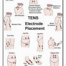 Tens Machine Pad Placement Chart Tens Unit Placement Chart Inspirational Tens Pad Placement